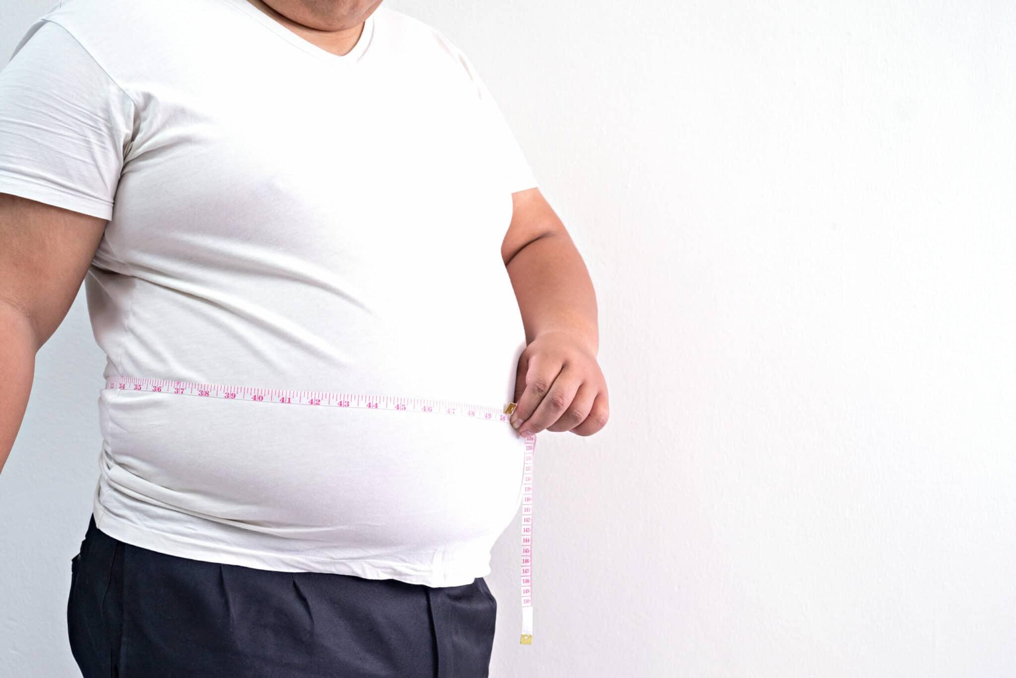 Obesità e fisioterapia